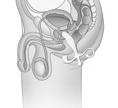 Массажёр простаты «5'' Male P-Spot» (Фото 1)